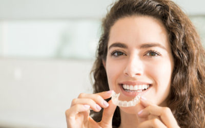 Clear Aligners vs Braces – What's Best For Me